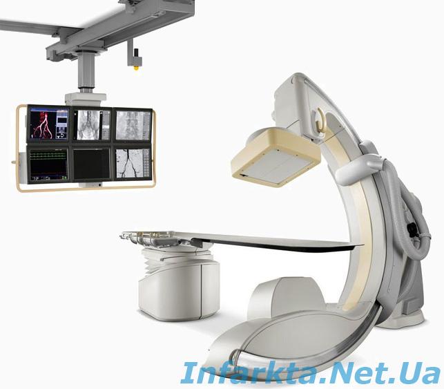 ангиографическая установка, коронарная ангиография, коронарография, ангиография