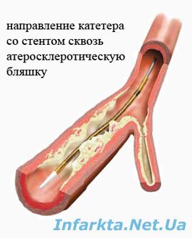 стентирование: позицианирование катетера со стентом